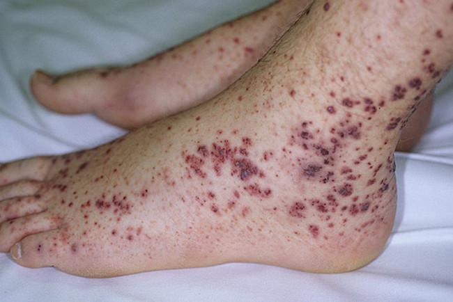 У ребенка снижены тромбоциты