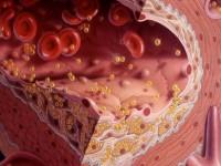 Чем опасен низкий холестерин в крови
