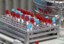 Что означает PDW в анализе крови