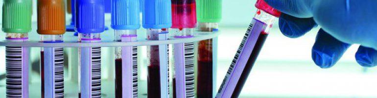 Анализ крови с лейкоцитарной формулой
