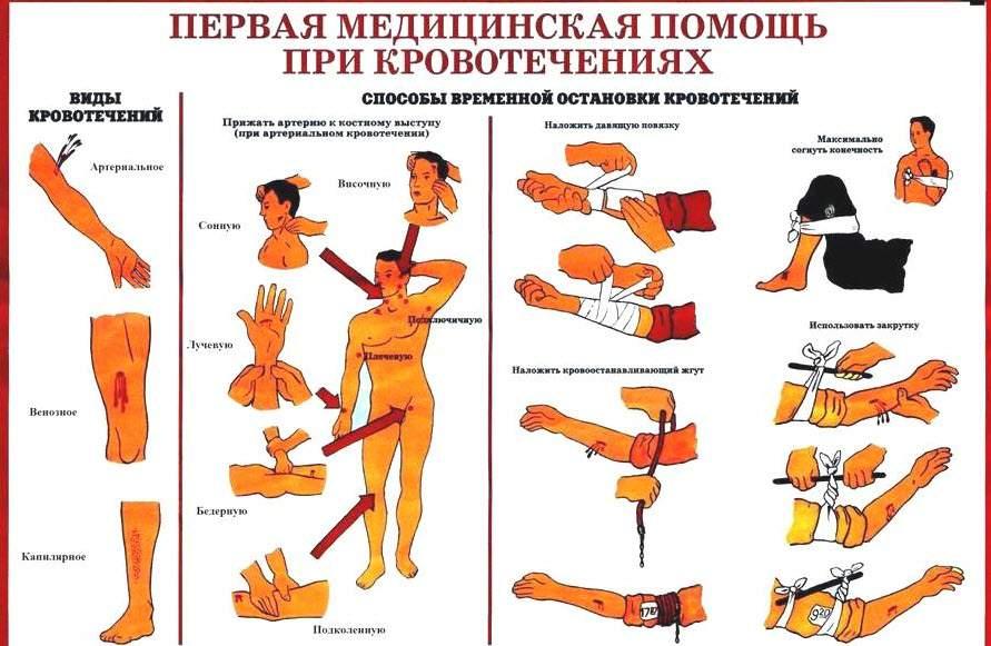 Кровоостанавливающие методы