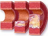 Нарушение функций обмена при гиперхолестеринемии