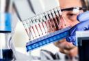 Исследование крови методом ИФА