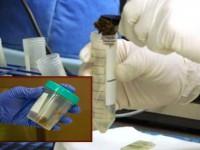 Наличие крови в анализе кала