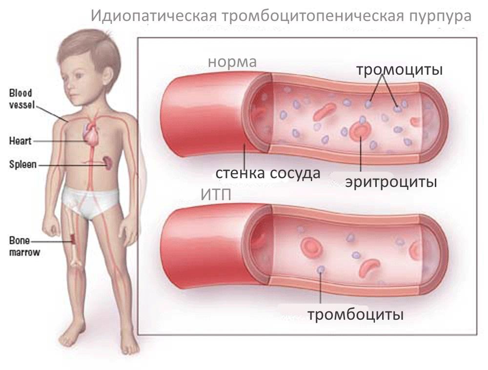 Причины патологии