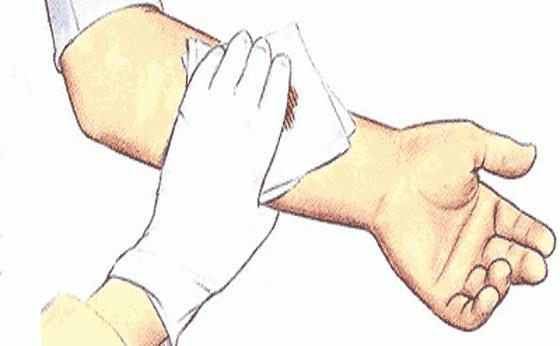 Остановка капиллярной крови