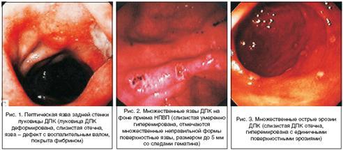 Систематизирование желудочных кровотечений