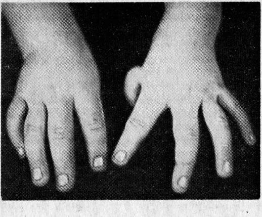 Разновидности апластической анемии