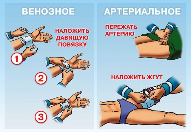 Наложение жгута при артериальном кровотечении