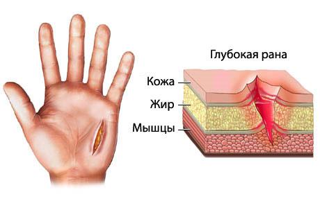 Порез руки