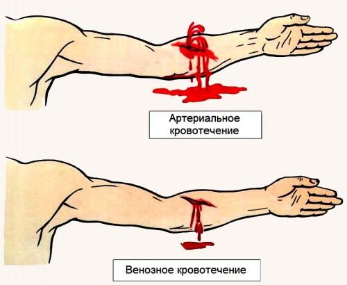 Разновидности кровотечений
