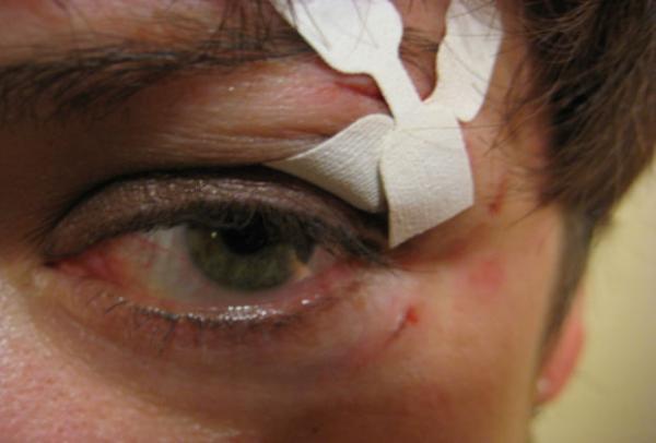 Рана на лице
