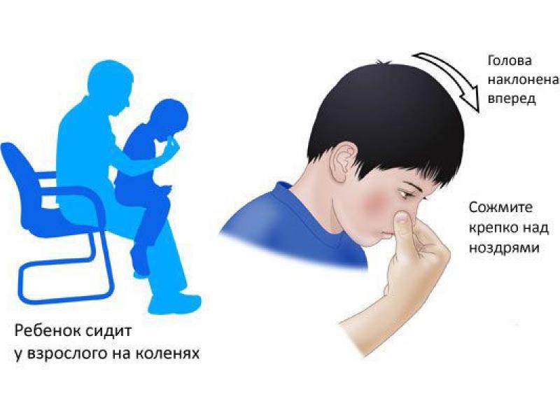 Остановка крови из раны у ребенка