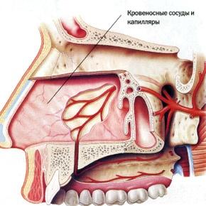 Виды носовых кровотечений