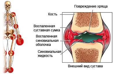Последствия заболевания стрептококком