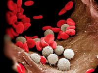 Опасен ли лейкоцитоз крови
