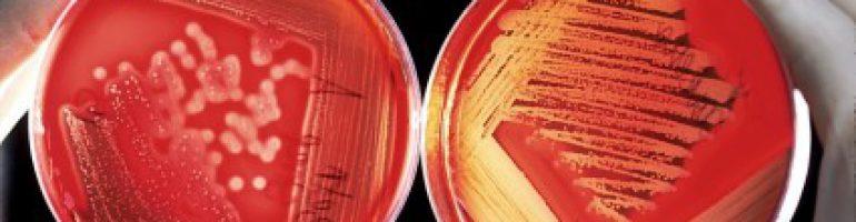 Заболевание крови полицитемия