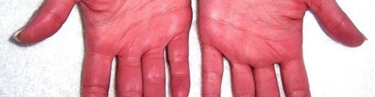 Как жить с заболеванием эритремия