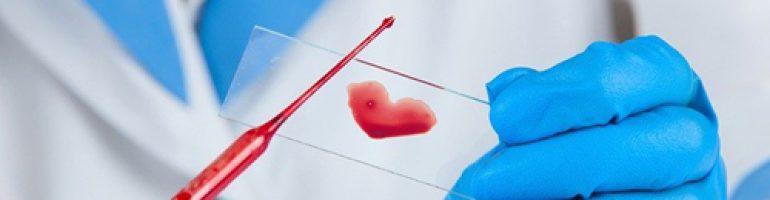 Для чего сдают посев крови на стерильность