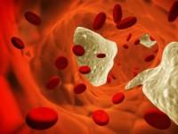 Содержание АСЛ-О в крови
