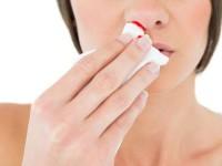 Как быстро остановить носовое кровотечение