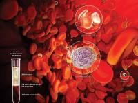 О чем свидетельствует пониженный гематокрит