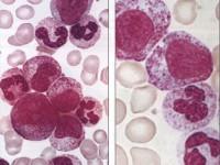 Что означают миелоциты в крови