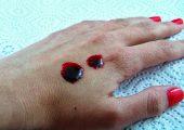 Что делать при очень густой крови