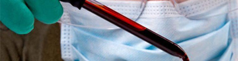 Для чего исследуют коагулограмму в анализе крови