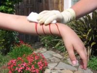 Эффективные способы остановки кровотечения