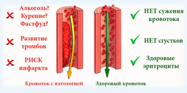 Опасность густой крови