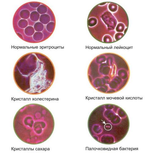 Изменение клеток крови
