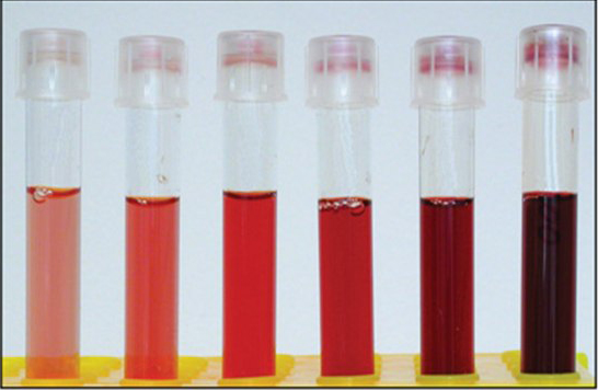 1 122 - Causes of symptoms and treatment of hemolysis of blood in men and women
