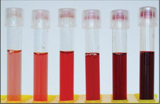 1 122 - A tünetek okai és a vér hemolízisének kezelése férfiaknál és nőknél