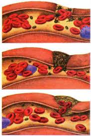 Значение фибриногена
