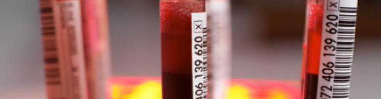 какой анализ крови показывает аллергию