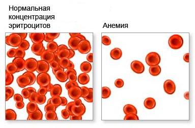Причины микроцитоза