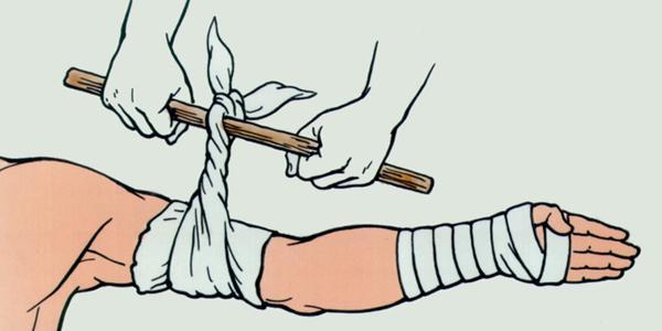 Как накладывается давящая повязка