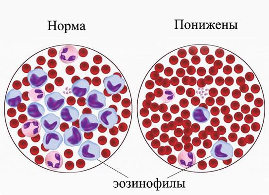 Степени эозинофилии