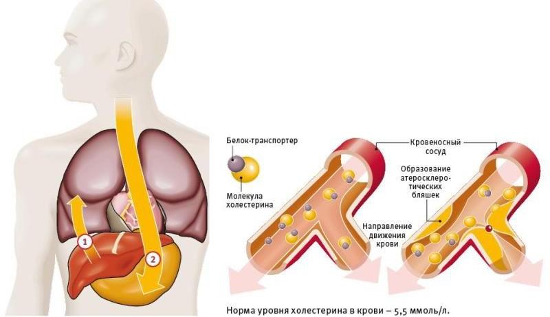 повышенный холестерин в крови беременных