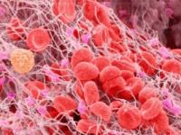 Для чего исследуют фибриноген в крови