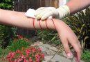 Способы доврачебной помощи при кровотечении