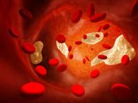 Что означает хилез крови
