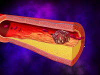 Что можно узнать по коагулограмме крови