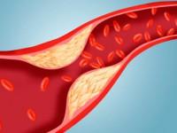 Что такое липидограмма крови
