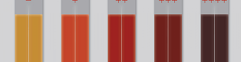 Гемолиз крови при сдаче анализа