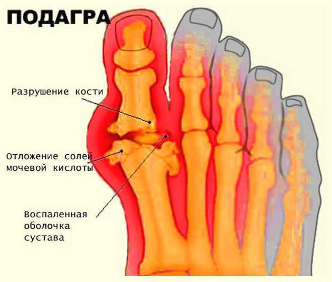 Как проявляется патологическое состояние