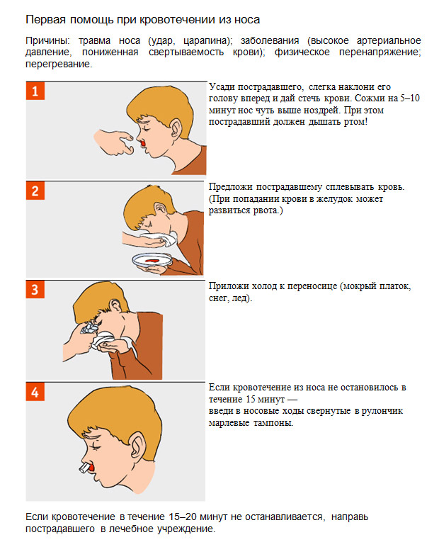1 129 - Penyebab mimisan yang sering pada orang dewasa