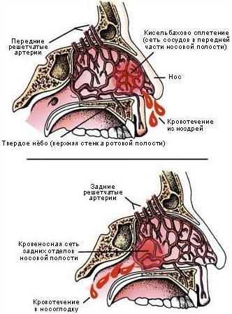 Особенности кровопотери
