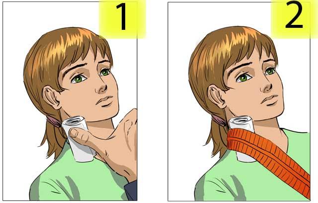 Кровотечения вен шеи